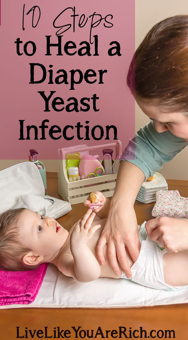 How to Cure Diaper Yeast Infections